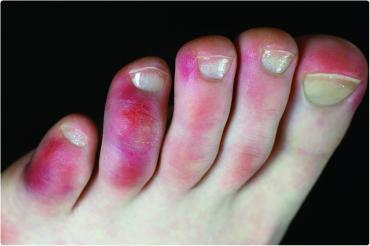 Biểu hiện trên bàn chân của người mắc Covid-19