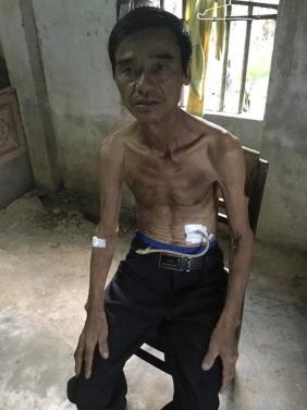 Chương trình HGTB hỗ trợ hoàn cảnh chú Đoàn Dững tại Lộc Phước - Đại Đồng