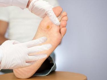 Chăm sóc bàn chân người bị tiểu đường